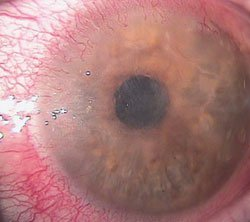 Herpes simplex keratitis with corneal ulceration, inflammation and