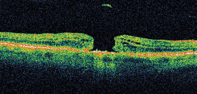 Figure 1b. OCT macular scan displaying an idiopathic macular hole in the right eye.
