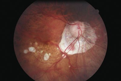 A detailed examination of the retina before cataract surgery is important