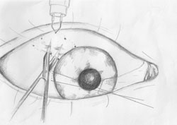 Figure 2. Following pterygium excision, the eye is rotated down and in to expose the superior temporal bulbar conjunctiva.