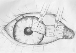 Figure 3. The conjunctival graft is appropriately positioned in the exposed scleral bed.