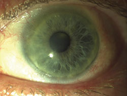 Figure 5. Clinical photographs showing a primary pterygium