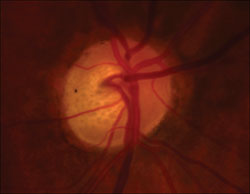 Figure 1. Optic disc photos of the right and left eyes