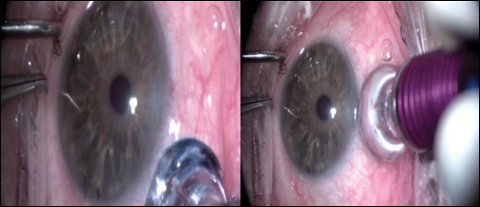 Micropulse Transscleral Diode Laser Cyclophotocoagulation
