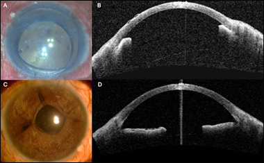 SFT for secondary angle-closure glaucoma