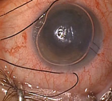 graft is unfolded and the anterior chamber is filled with air