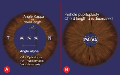 chord mu and angle kappa