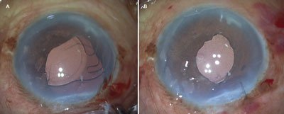 Preoperative and postoperative images