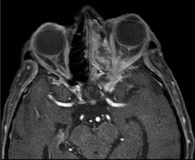 postsurgical sinus changes
