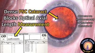 dense posterior subcapsular cataract