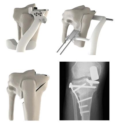 3D knee surgery