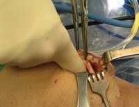 cpt code knee extensor mechanism realignment