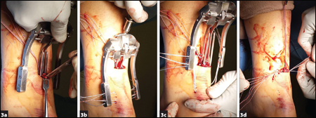For distal jig insertion