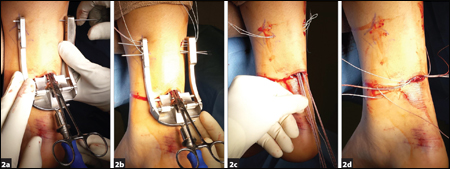 Insert the first and second needles into their respective holes and through the tendon