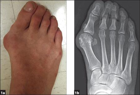 symptomatic hallux valgus deformity and pain