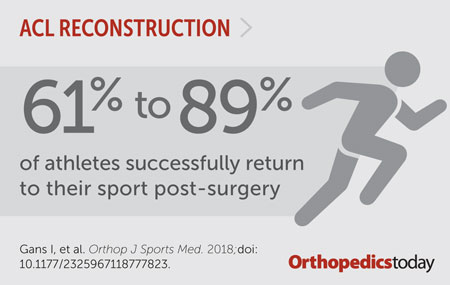 ACL reconstruction graphic