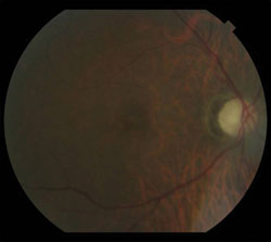 No hemorrhages or exudates were seen in either eye.