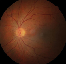 Color fundus photo of the left eye.