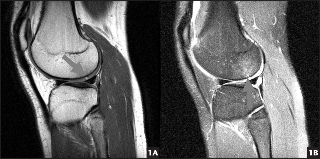 Magnetic resonance imaging indicating osteochondritis dissecans. (A) Full thickness osteochondritis dissecans (arrow) is shown. (B) Defect and associated bone edema (arrow) are shown.