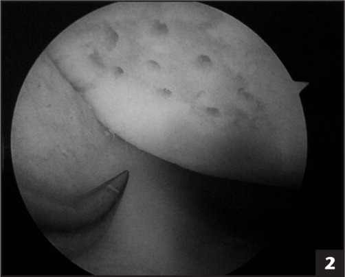 Chondroplasty and drilled holes shown via photograph taken at time of arthroscopy.