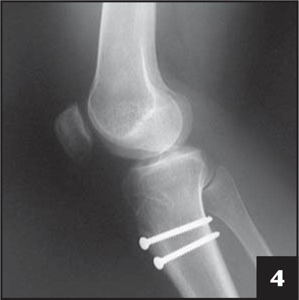 Postoperative radiograph demonstrates a healed osteotomy and correction of patella alta.