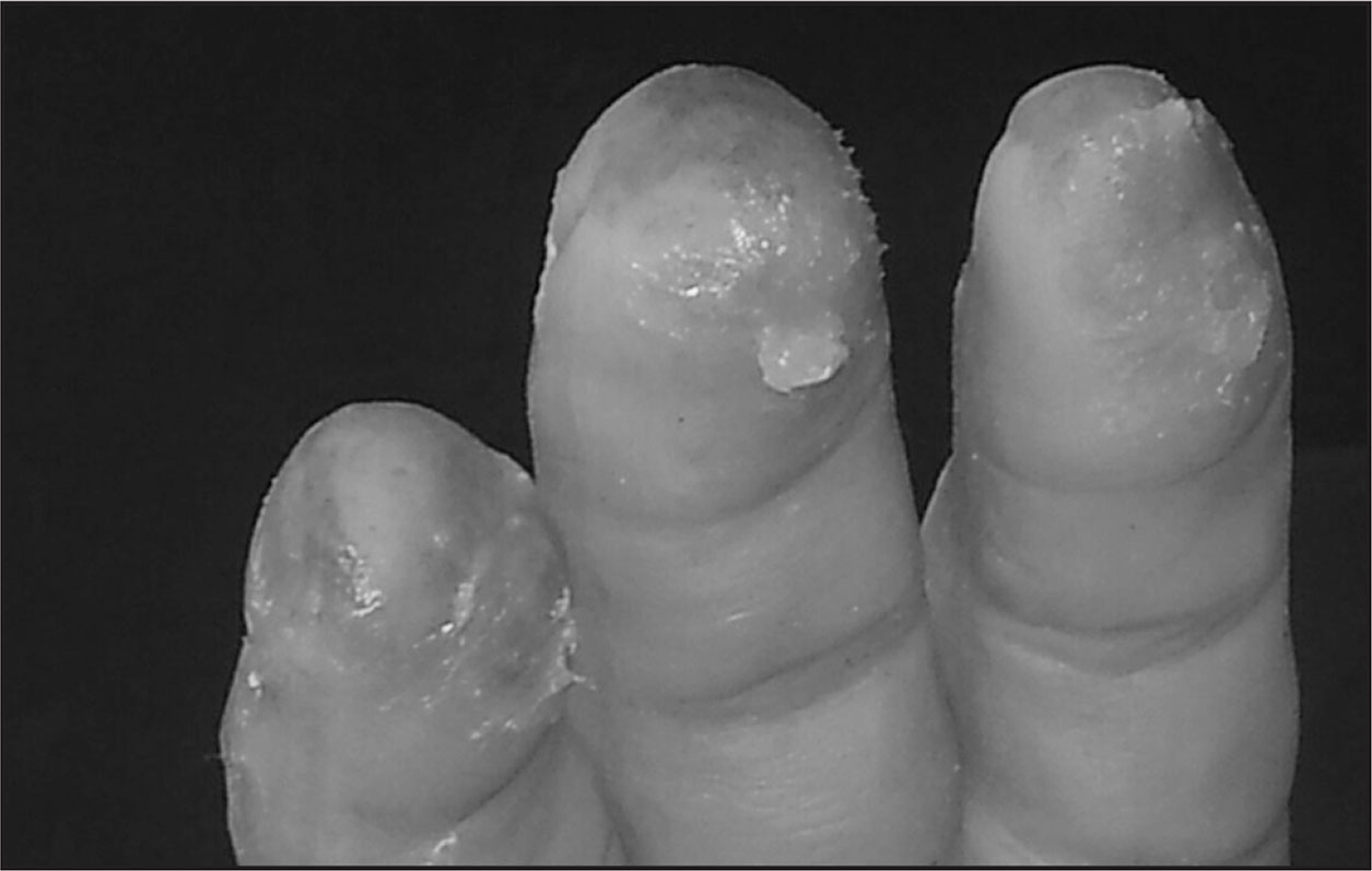 Frostbite to the fingers can be simulated.