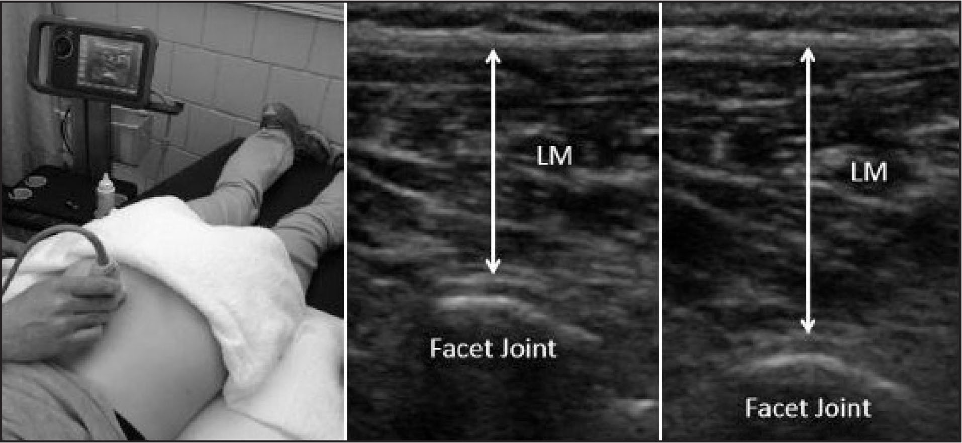 Assessment of the lumbar multifidi muscles (LM).