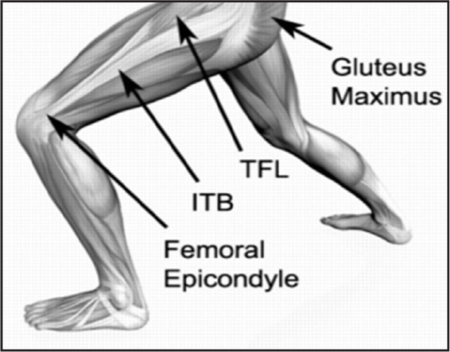 Anatomy of the iliotibial band (ITB). TFL = tensor fascia lata Reprinted with permission from PhysioAdvisor.com.au [https://www.physioadvisor.com.au/injuries/knee/iliotibial-band-syndrome/].