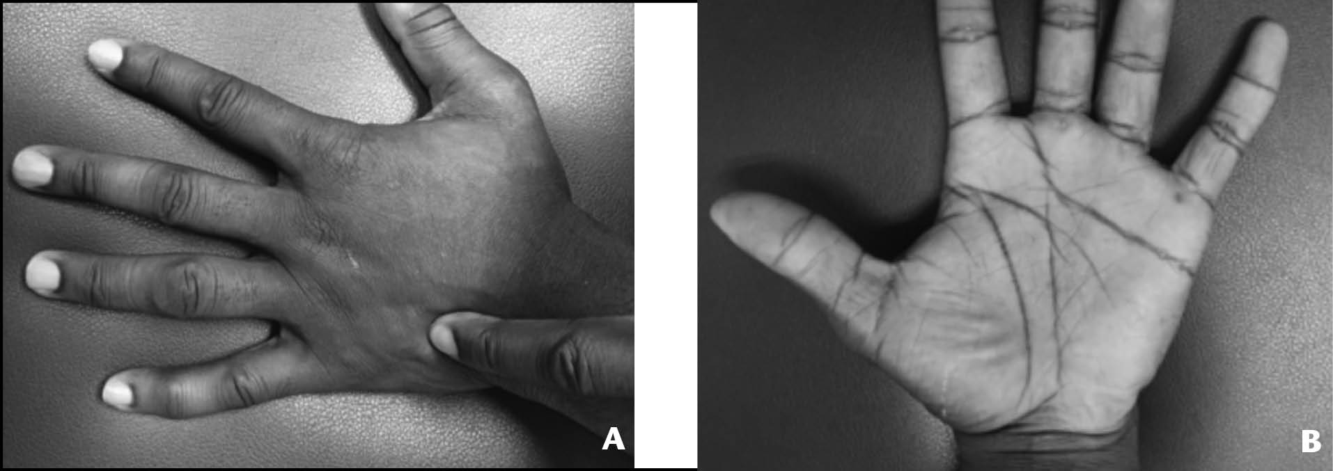 Clinical photograph of case 2 identifying (A) the point of maximal tenderness and (B) palmar ecchymosis.