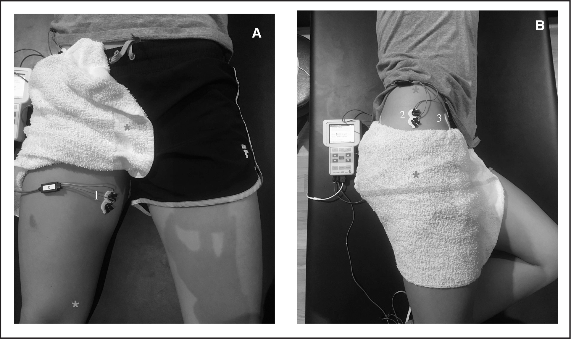 Surface electromyography (sEMG) electrode placement. (A1) Adductor longus electrode (*origin and insertion). (B2) Gluteus medius electrode (*origin and insertion). (B3) Anterior superior iliac spine (reference electrode).