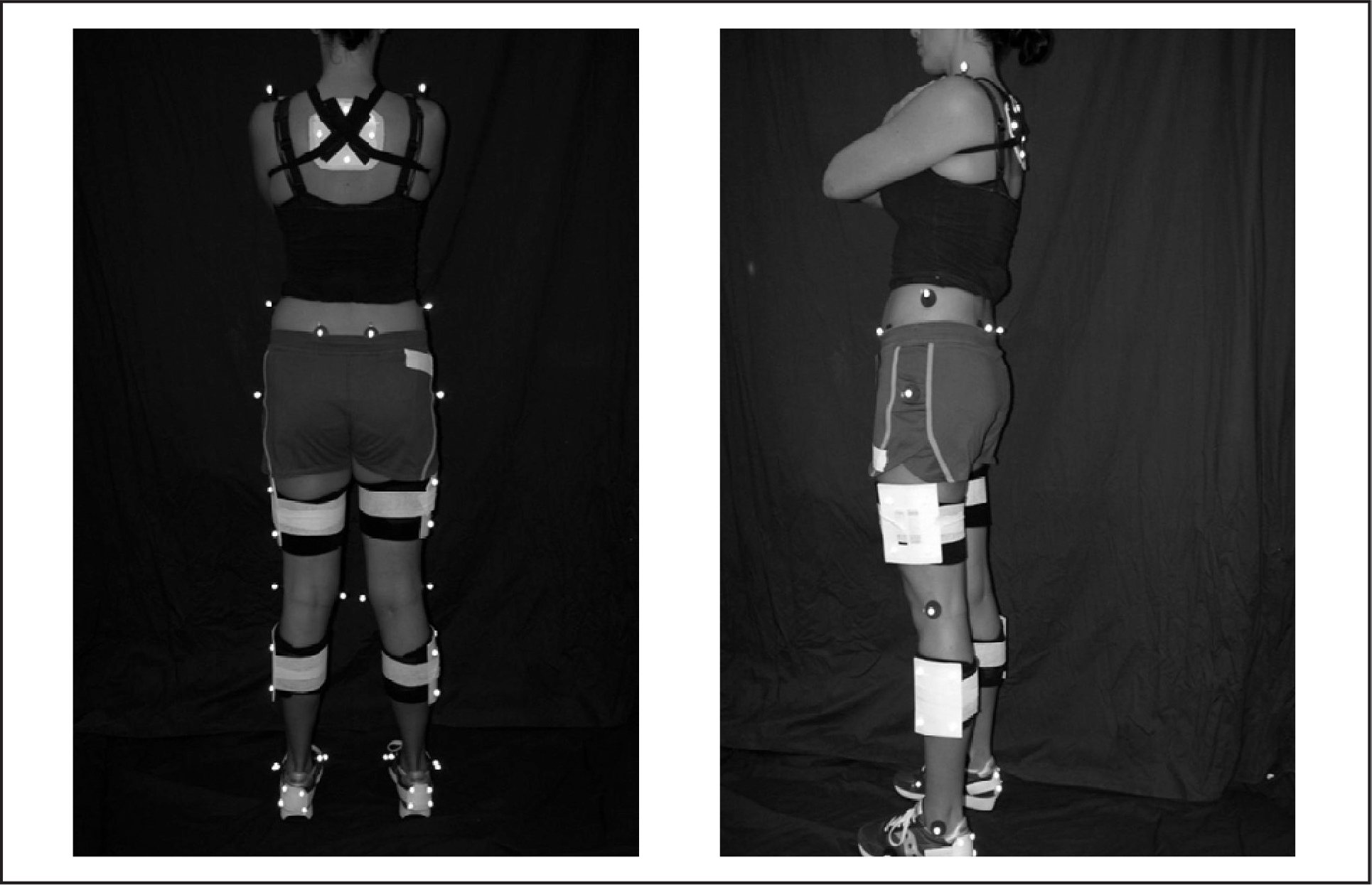 Placement of reflective markers for three-dimensional joint motion analysis.