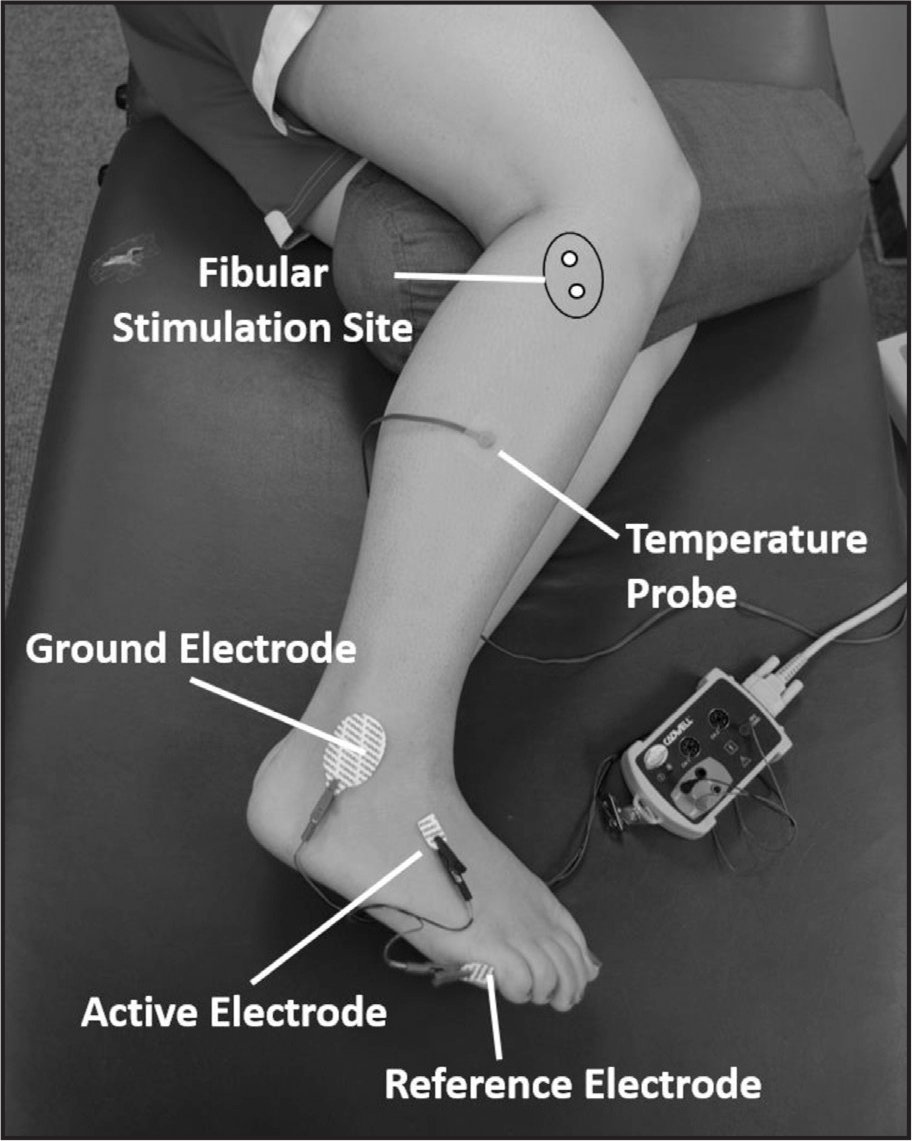 Configuration of the nerve conduction velocity to stimulate the peroneal nerve.