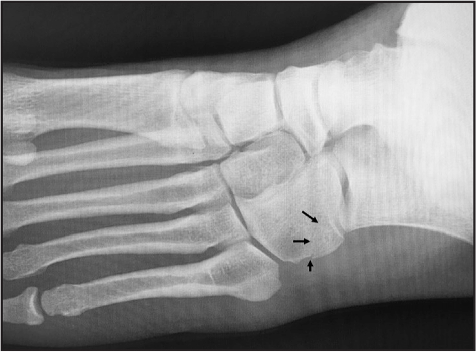 Oblique x-ray of the foot showing cortical disruption at the lateral aspect of the cuboid with lucency extending into the body of the cuboid (arrows).