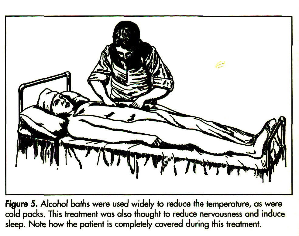 Figure 5. Alcohol bafhs were used widely to reduce the temperature, as were cold packs. This treatment was also thought to reduce nervousness and induce sleep. Note how the patient is completely covered during this treatment.