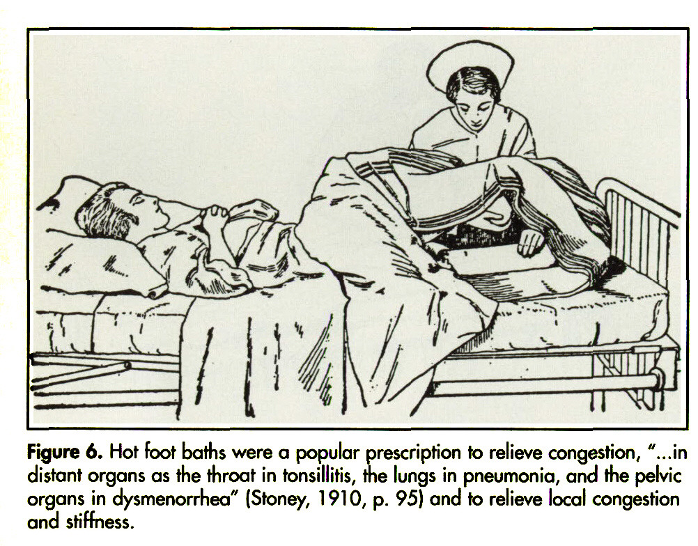 """Figure 6. Hot foot baths were a popular prescription to relieve congestion, """"...in distant organs as the throat in tonsillitis, the lungs in pneumonia, and the pelvic organs in dysmenorrhea"""" (Stoney, 1 91 0, p. 95) and to relieve local congestion and stiffness."""