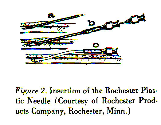 Figure 2. Insertion of the Rochester Plastic Needle (Courtesy of Rochester Products Company, Rochester, Minn.)
