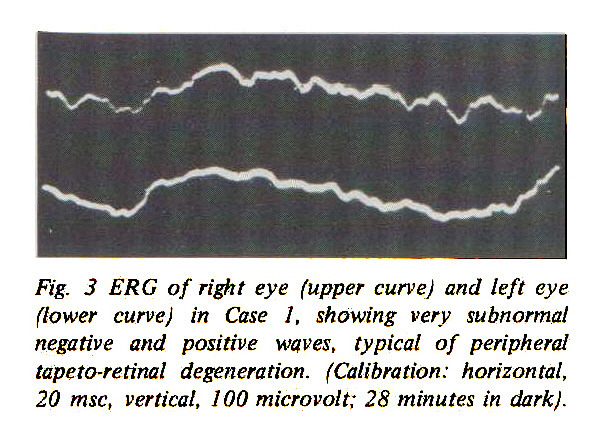 Fig. 3 ERG of right eye (upper curve) and left eye (lower curve) in Case 1, showing very subnormal negative and positive waves, typical of peripheral tapeto-retinal degeneration. (Calibration: horizontal, 20 msc, vertical, 100 microvolt; 28 minutes in dark).