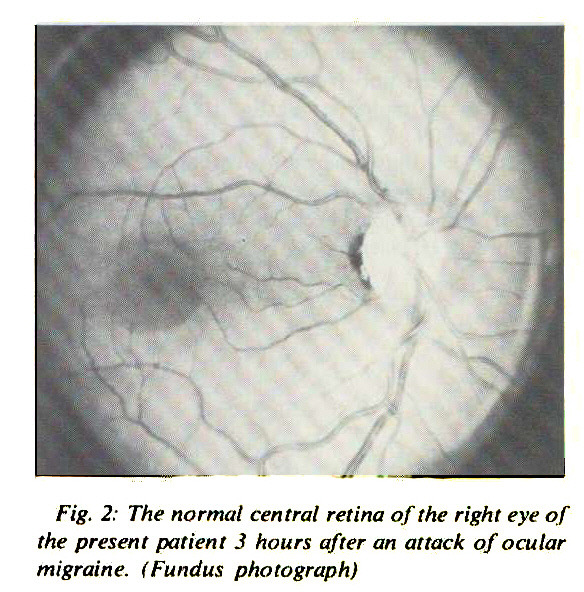 Fig. 2: The normal central retina of the right eye of the present patient 3 hours after an attack of ocular migraine. (Fundus photograph)