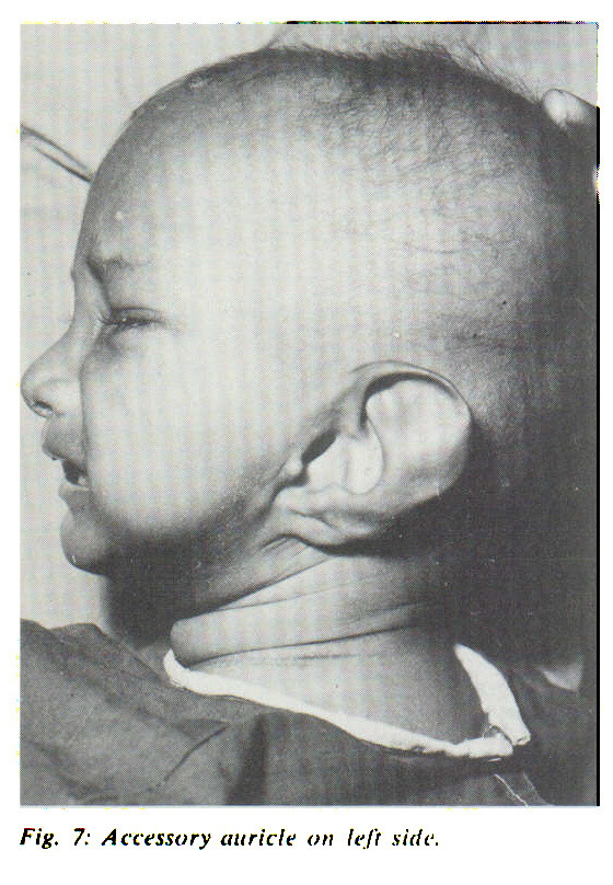 Fig. 7: Accessory auricle on left side.