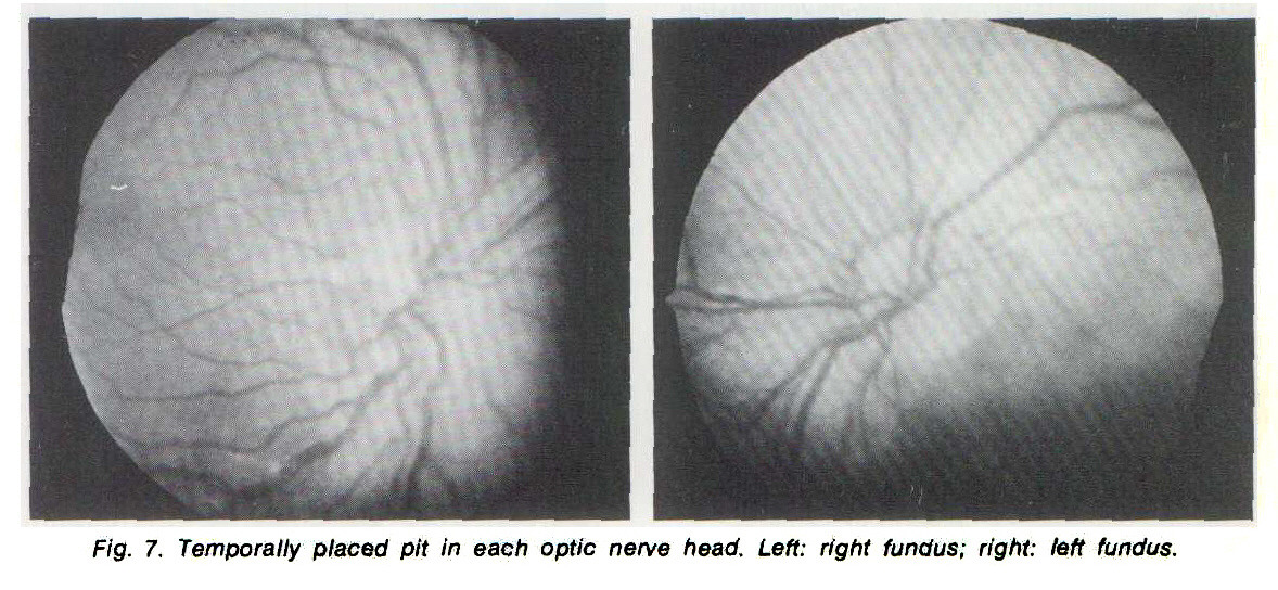 Fig. 7. Temporally placed pit In each optic nerve head. Left: right fundus; right: left fundus.
