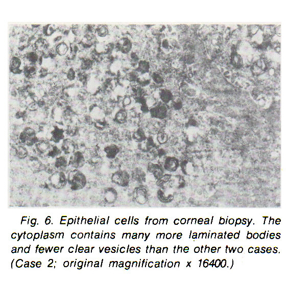 Fig. 6. Epithelial cells from corneal biopsy. The cytoplasm contains many more laminated bodies and fewer clear vesicles than the other two cases. (Case 2; original magnification ? 16400.)