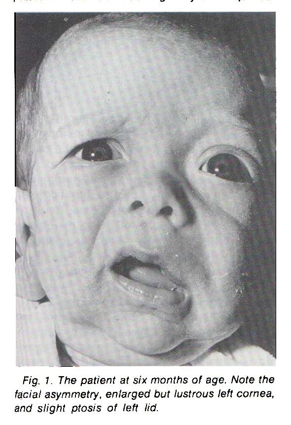 Fig. 1. The patient at six months of age. Note the facial asymmetry, enlarged but lustrous left cornea, and slight ptosis of left lid.
