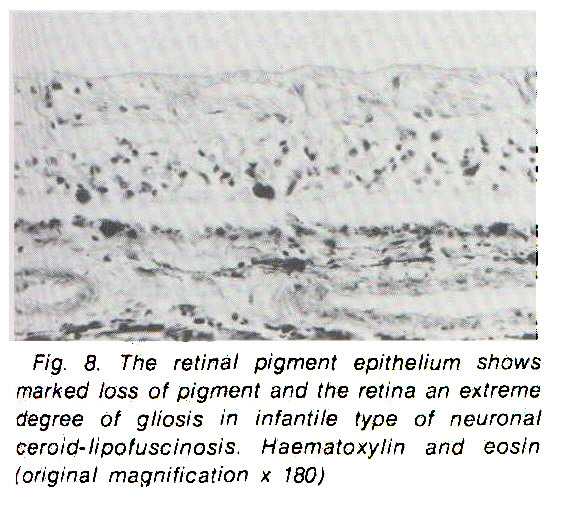 Fig. 8. The retinal pigment epithelium shows marked loss of pigment and the retina an extreme degree of gliosis in infantile type of neuronal ceroid-lipofuscinosis. Haematoxylin and eosin (original magnification x 780)