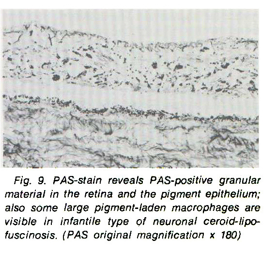 Fig. 9. PAS-stain reveals PAS-positive granular material in the retina and the pigment epithelium; also some large pigment-laden macrophages are visible in infantile type of neuronal ceroid-lipofuscinosis. (PAS original magnification x 180)