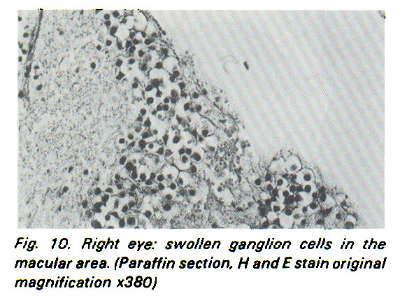 Fig. JO. Right eye: swollen ganglion cells in the macular area. (Paraffin section, ? and E stain original magnification x380}