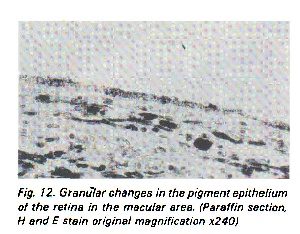 Fig. 12. Granular changes in the pigment epithelium of the retina in the macular area. (Paraffin section, H and E stain original magnification x240)