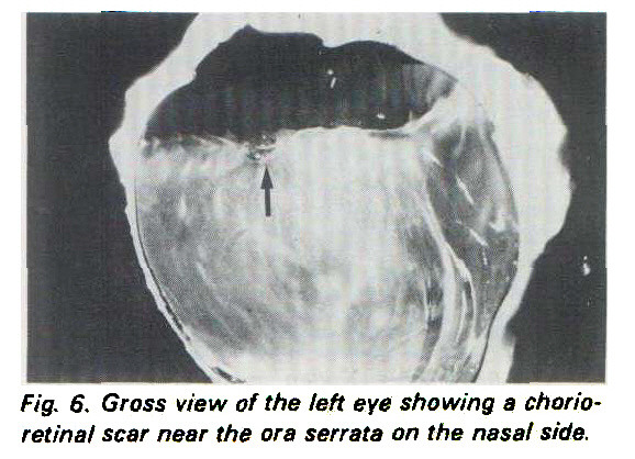 Fig. 6. Gross view of the left eye showing a chorio retinal scar near the ora serrata on the nasal side