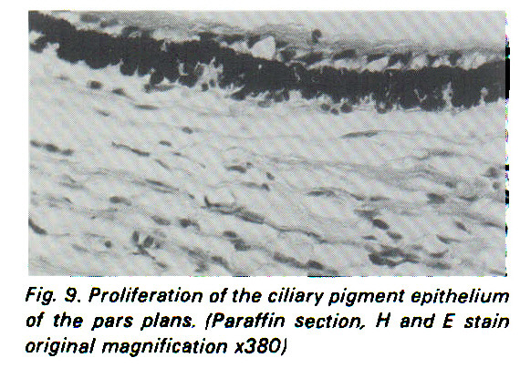 Fig. 9. Proliferation of the ciliary pigment epithelium of the pars plans. Paraffin section, ? and E stain original magnification x380)
