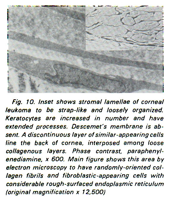 Fig. 10. Inset shows stromal lamellae of corneal leukoma to be strap-like and loosely organized. Keratocytes are increased in number and have extended processes. Descemets membrane is absent. A discontinuous layer of similar-appearing cells fine the back of cornea, interposed among loose collagenous layers. Phase contrast, paraphenylenediamine, x 600. Main figure shows this area by electron microscopy to have randomly-oriented collagen fibrils and fibrob/astic-appearing cells with considerable rough-surfaced endoplasmic reticulum (original magnification x 12,500)