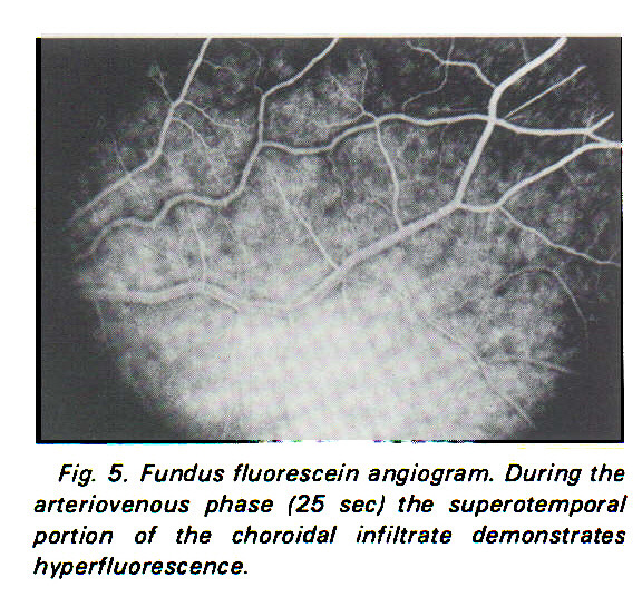 Fig. 5. Fundus fluorescein angiogram. During the arteriovenous phase (25 sec) the super otempor al portion of the choroidal infiltrate demonstrates hyperfluorescence.